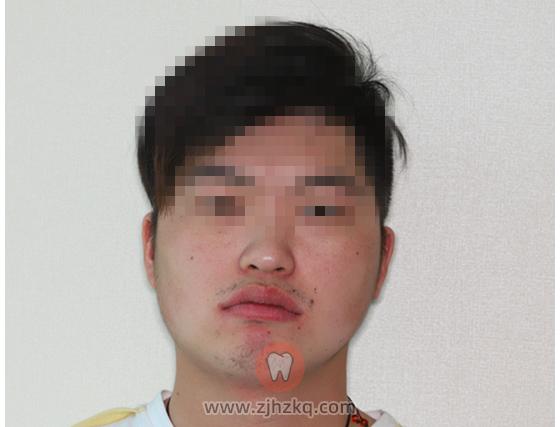 杭州方朝荣院长颞颌紊乱看牙记