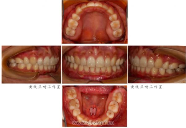 杭口正畸黄统隐形矫治看牙记