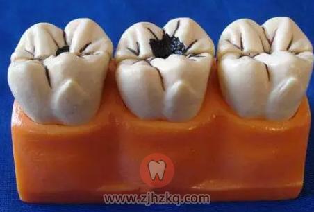 孩子为什么容易长蛀牙