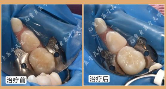 杭州家长如何预防孩子长蛀牙