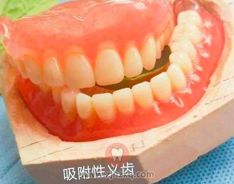 杭州镶满口牙全口假牙价格一般是多少钱
