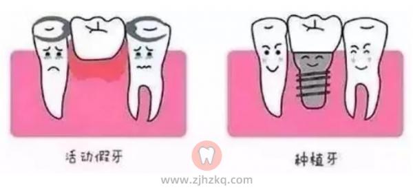 种植牙和假牙有什么区别