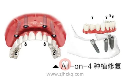 杭州种植牙价格为啥医院差价这么大?