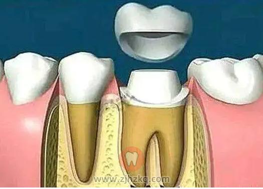 杭州根管治疗牙冠费用