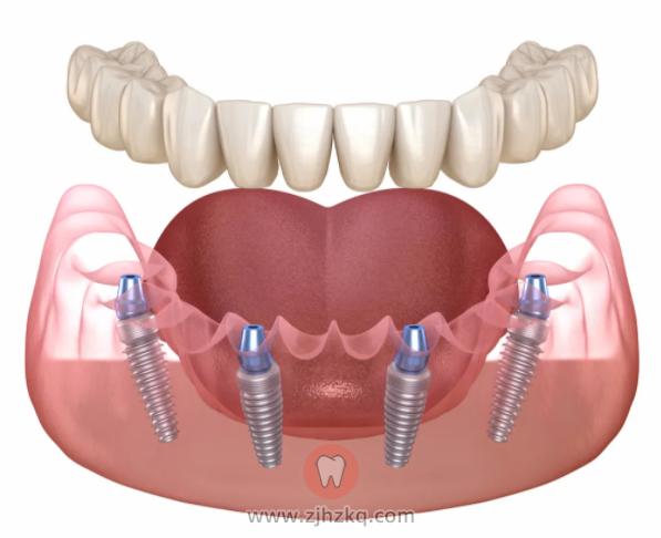 All-on-N 种植牙技术