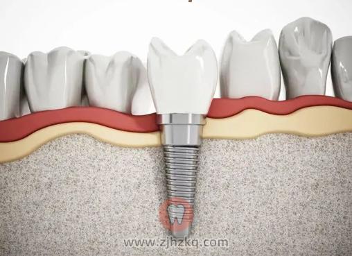 杭州美奥口腔种牙返利补贴活动