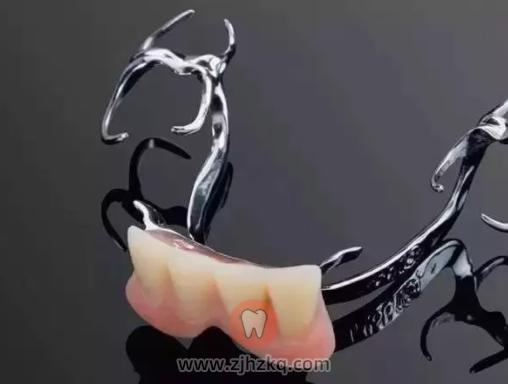 杭州活动义齿价格多少钱?