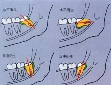 杭州公立牙科医院拔牙价格