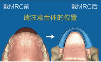 杭州儿童早期矫治MRC肌功能正畸
