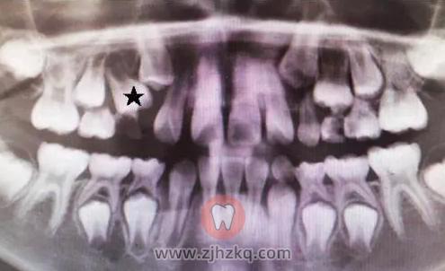 杭州儿童双排牙齿看牙记