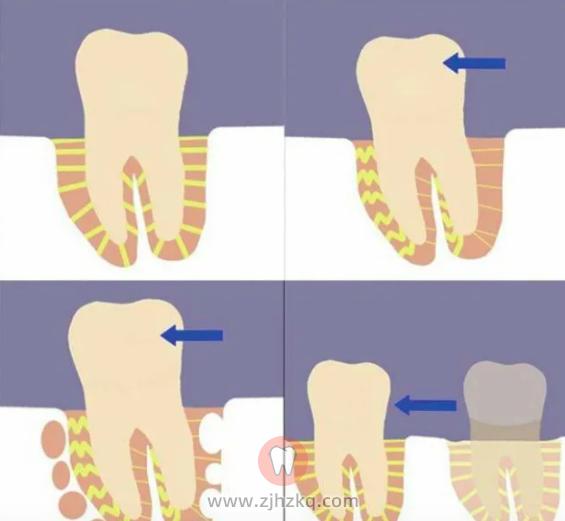 牙齿矫正后松动图片