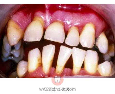 牙龈萎缩图片