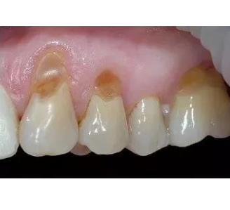 牙齿楔状缺损图片