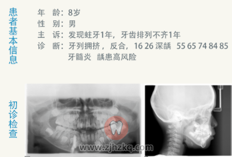 杭州儿童早期矫正地包天反颌案例