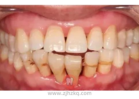 牙龈萎缩症状图片