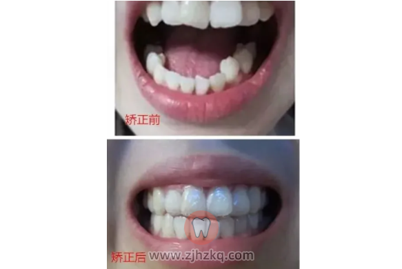 杭州不带牙套整牙案例