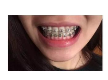 杭州金属牙套矫牙案例