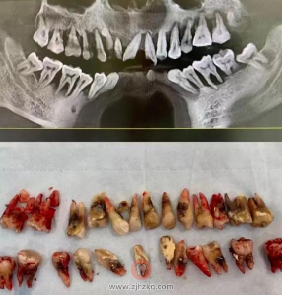 牙周炎到底有多可怕?