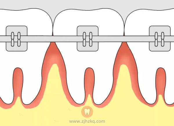 牙齿矫正器就是牙套吗?