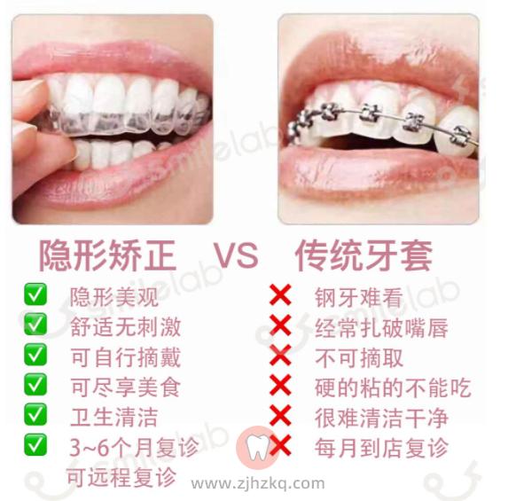 钢丝牙套和隐形牙套哪个好?