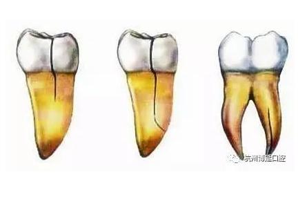 牙隐裂图片