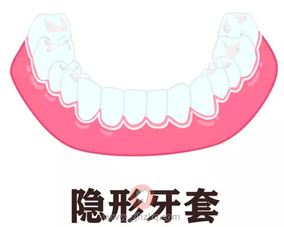 杭州地区各类牙套价格汇总整理