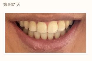 北京口腔医院正畸看牙记