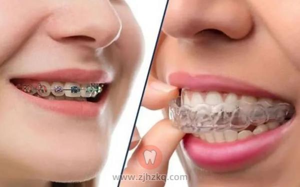 为什么杭州牙科医生都推荐隐形牙套