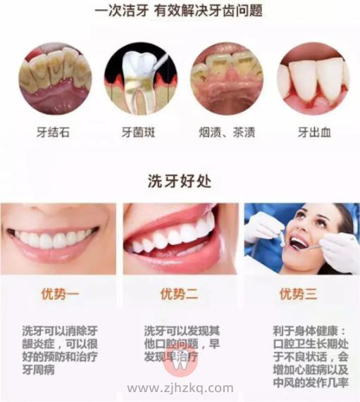 洗牙的好处有哪些?