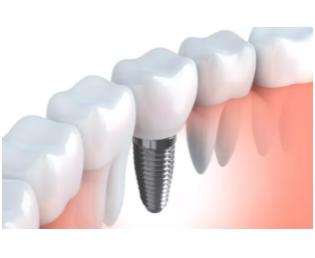 种植牙技术好的杭州私立口腔医生求推荐?