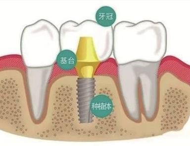杭州老年人种牙有年龄限制吗?