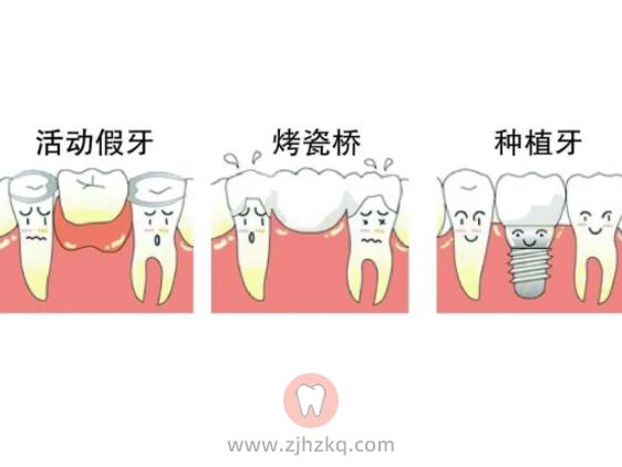 为什么杭州口腔医生总是推荐种植牙?